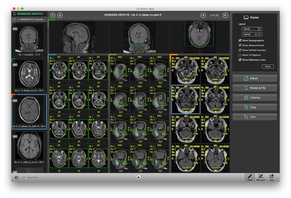 Escape :: Medical Viewer :: EMV Mac